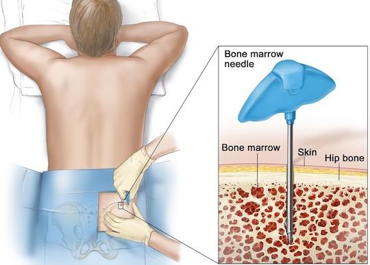 bone marrow aspirate stem cells