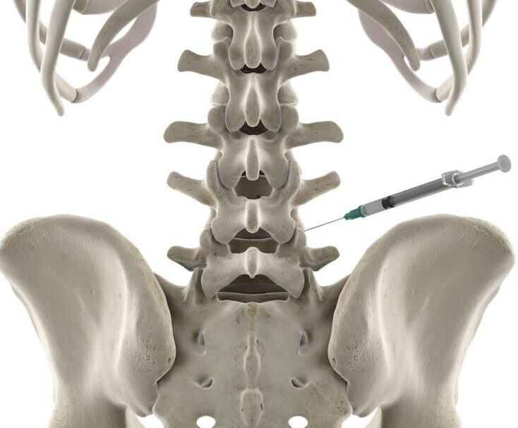 prolotherapy injection back pain estero