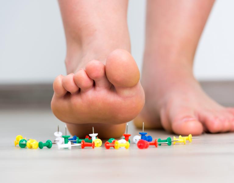 Neuropathy Feet Estero
